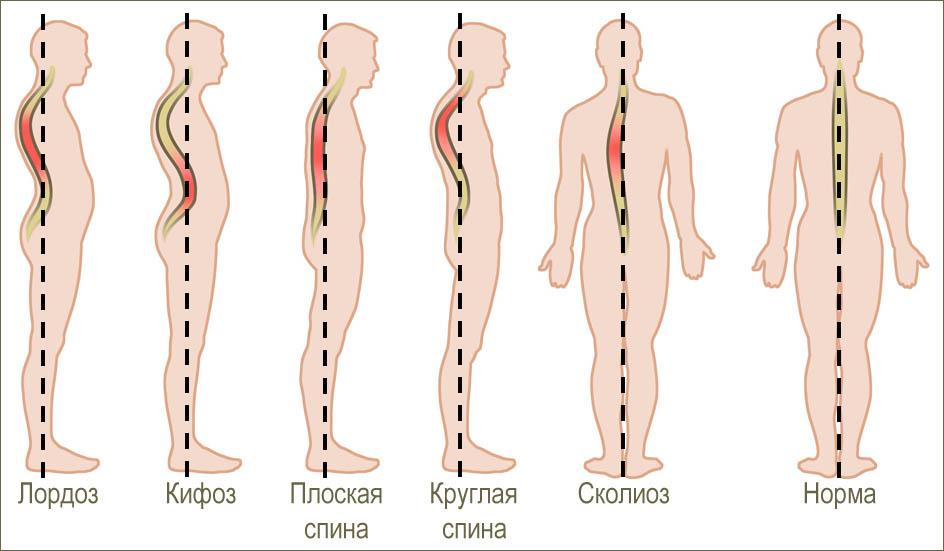 Лучшее лечение остеохондроза позвоночника