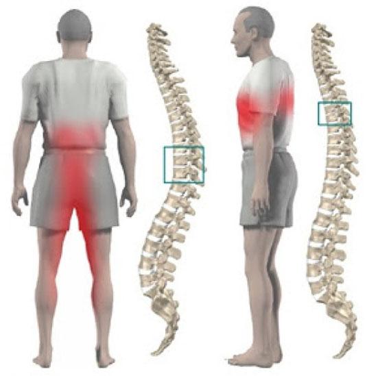 Межпозвонковый остеохондроз - лечение