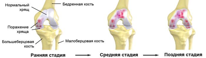 Остеохондроз коленного сустава - причины