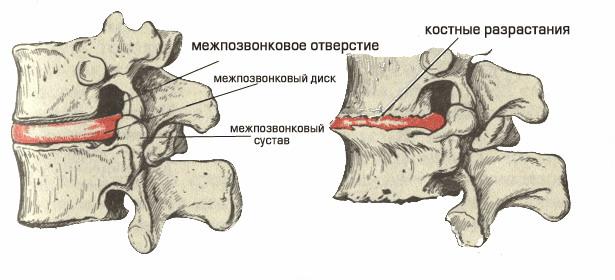 Симптомы остеохондроза межпозвоночных дисков