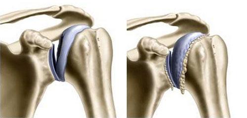 Артрит плечевого сустава – особенности