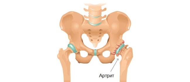 Артрит тазобедренного сустава — причины