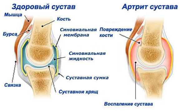 Полиартрит коленного сустава - симптомы