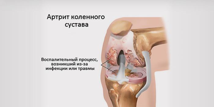 Причины полиартрита