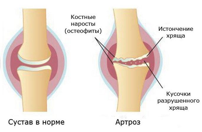 Реактивный артрит - профилактика