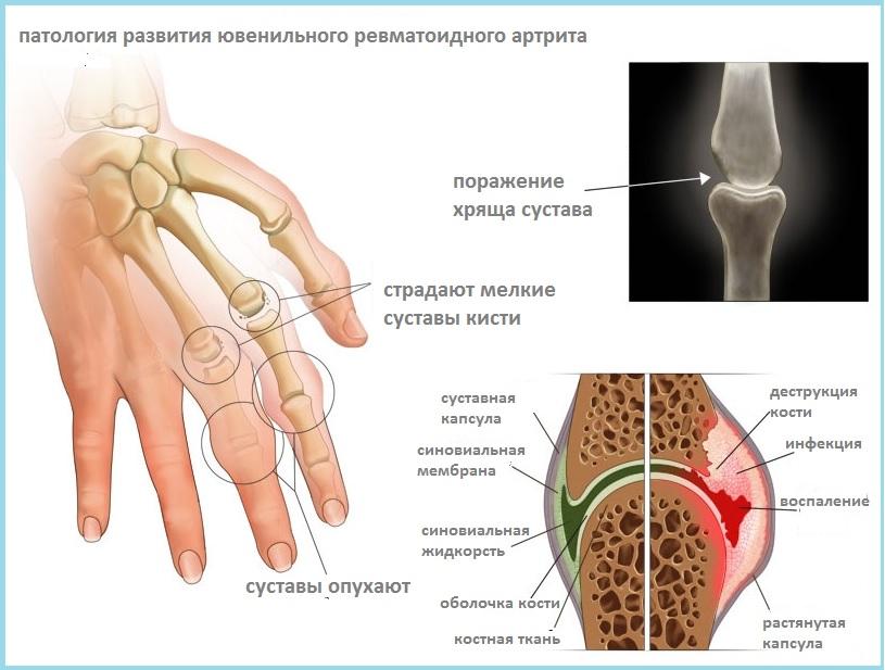 Ювенильный ревматоидный артрит – причины
