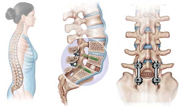 Перелом позвоночника - лечение
