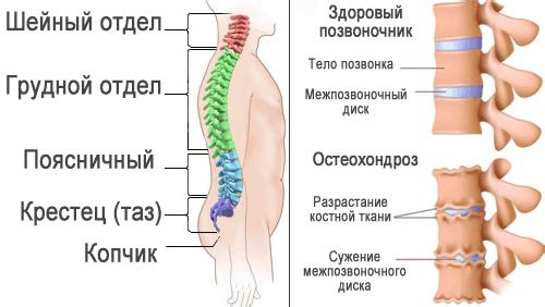 Медицинские препараты в лечении остеохондроза