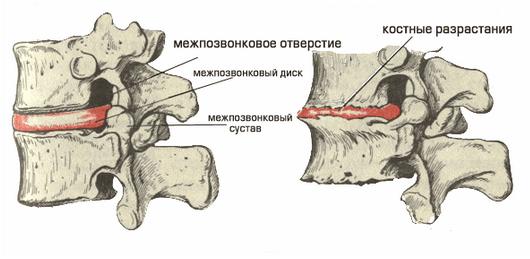 Остеохондроз позвоночника - причины