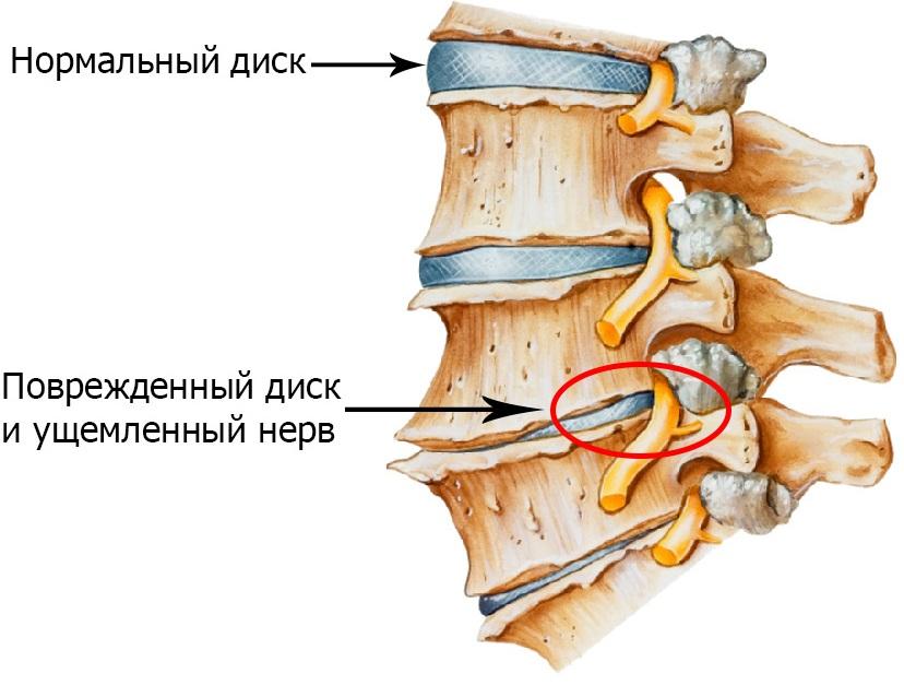 Остеохондроз позвоночника - симптомы