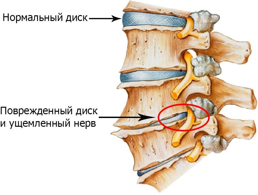 Межпозвонковый остеохондроз - причины