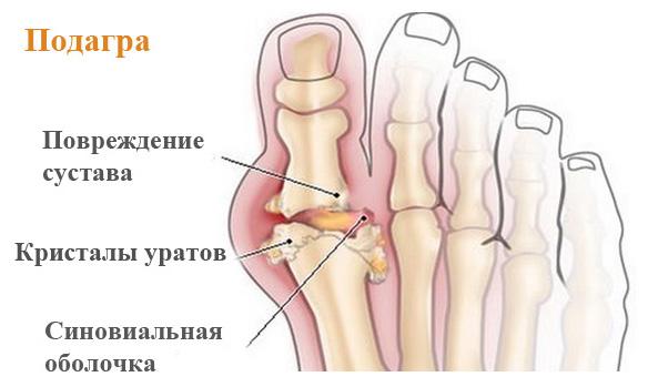 Подагрический артрит — причины