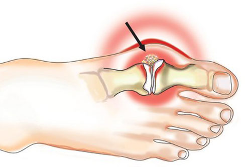 Подагрический артрит — симптомы