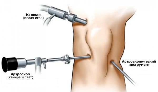 Полиартрит коленного сустава - лечение