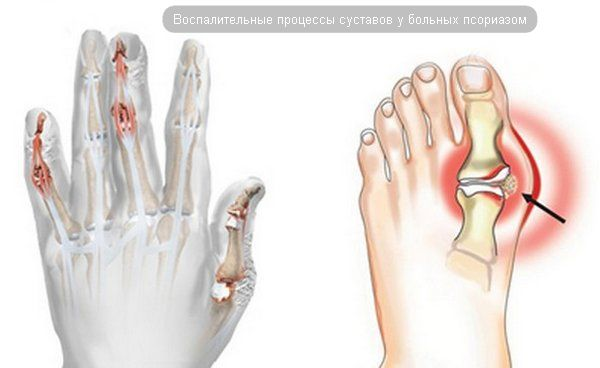 Псориатический артрит — причины