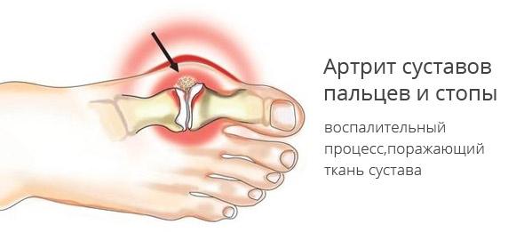Артрит стопы - причины