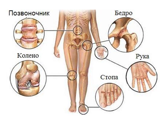 Реактивный артрит – причины