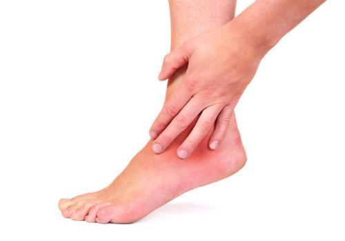 Артрит голеностопного сустава - симптомы