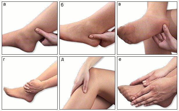 Лечение артрита голеностопного сустава